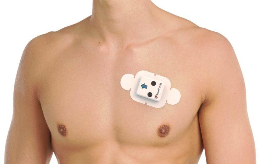 Smartcardia – ScaAI Patch