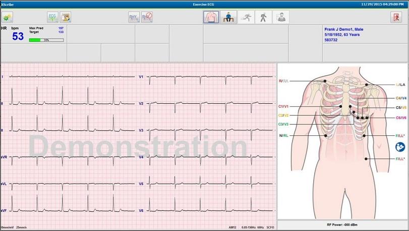 Test d'effort cardiaque XScribe™ Welch Allyn®